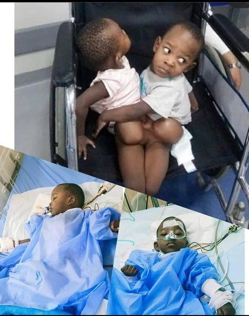 التؤام البوروندي قبل وبعد عملية الفصل